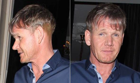 gordon ramsay sparks hair implant rumours after bizarre cut at