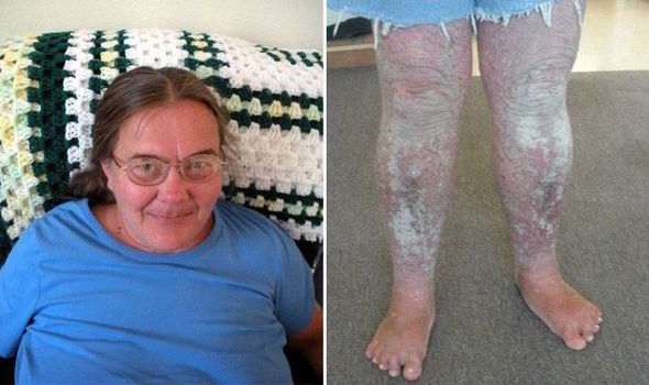 I M Turning Into A Tree Woman S Psoriasis Is So Severe That Her