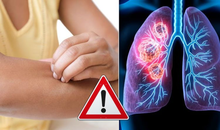 Lung Cancer Symptoms Signs Of A Tumour Include A Patchy Skin Rash When To See A Doctor Express Co Uk