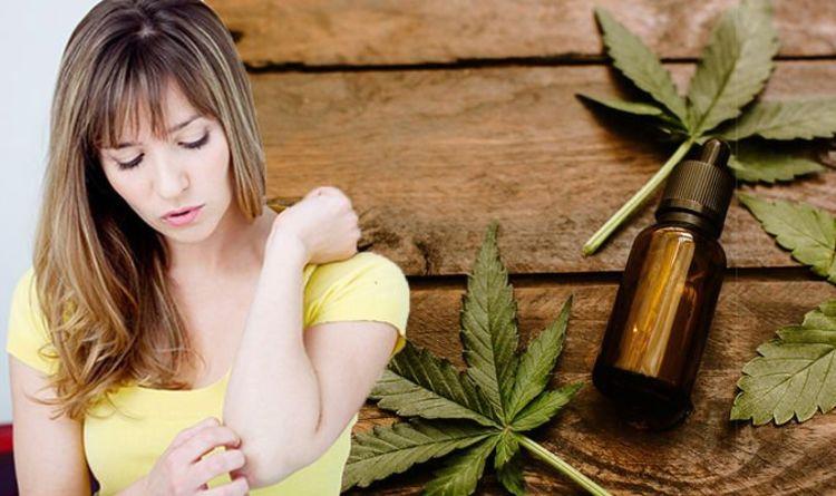 Eczema: Can CBD oil help to treat and improve the symptoms of eczema
