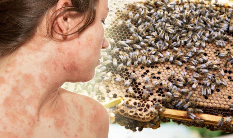 Eczema treatment: Putting honey on your skin could slash