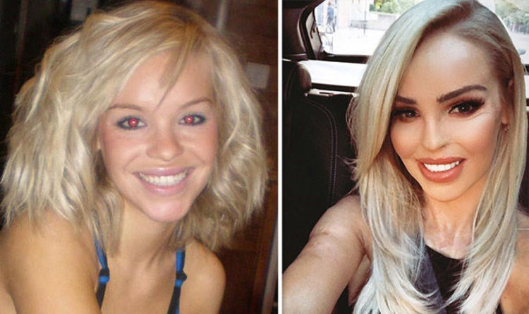Image result for katie piper before acid attack