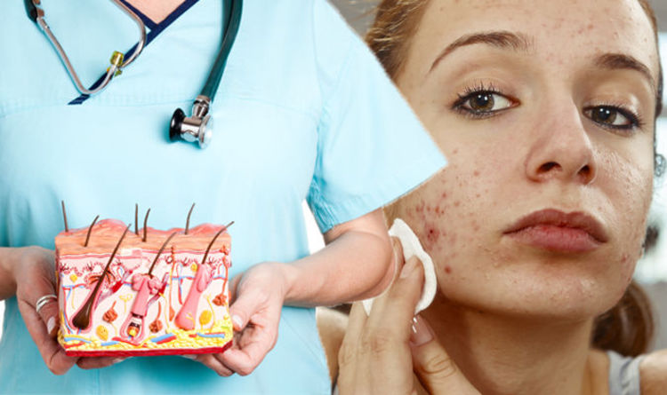 Acne Treatment Seven Ways To Ease Symptoms Of Skin Condition Acne