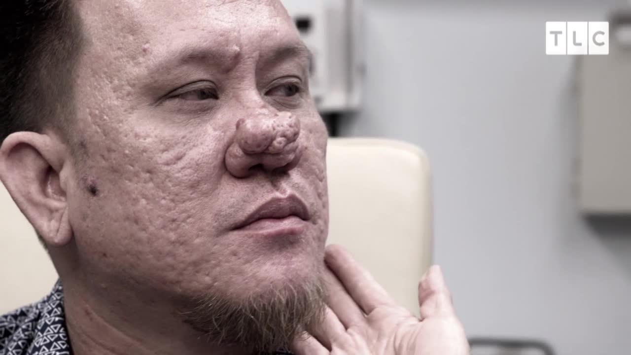 Dr  Pimple Popper: Man celebrates having nose pimple removed
