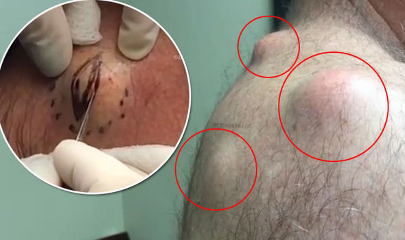 GRAPHIC CONTENT: Sickening video shows three GIANT cysts | Express co uk