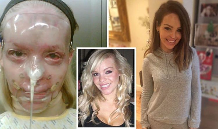 Katie Piper Acid Attack Strictly Star Looks Back At Journey Since Attack In Pictures Celebrity News Showbiz Tv Express Co Uk