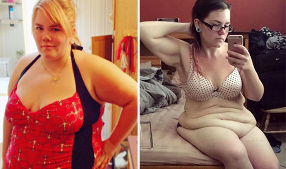 Woman Left With Excess Skin Weighing Three Stone After Weight Loss