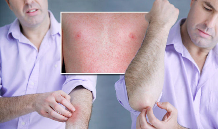 Measles rash: Five symptoms to look out for after 'ongoing large outbreaks'  in UK