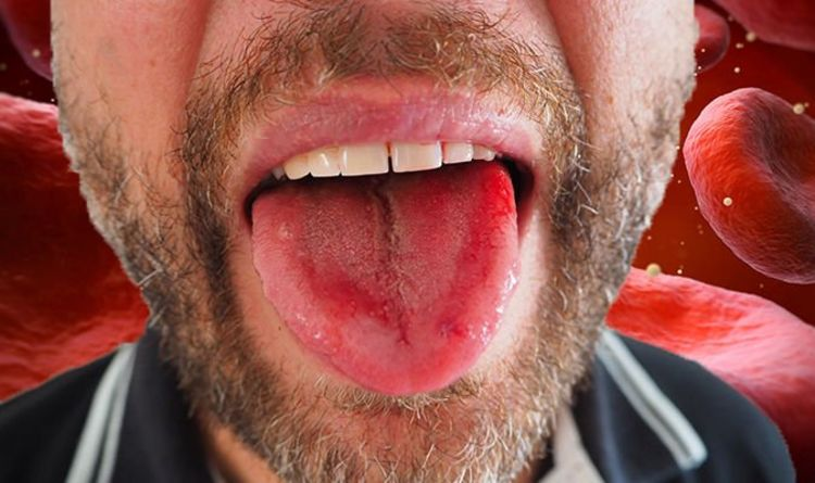 Vitamin B12 deficiency: This colour tongue is one of the symptoms of