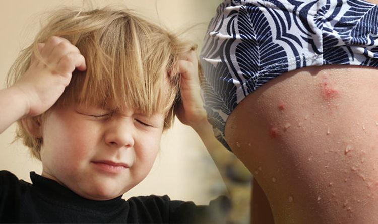 Impetigo rash can be caused by head lice - use this method of