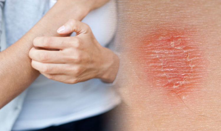 causes of dry and itchy skin