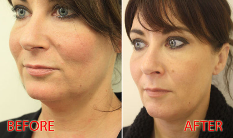 What is a thread lift? Before and after pictures show anti
