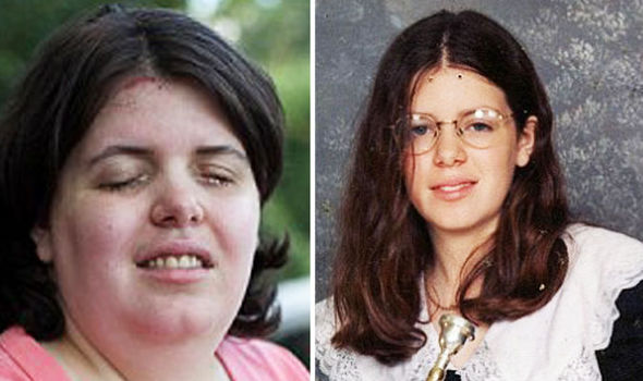 99833f8c642 BARCROFT MEDIA. Shuping had drain cleaner poured into her eyes to make her  blind