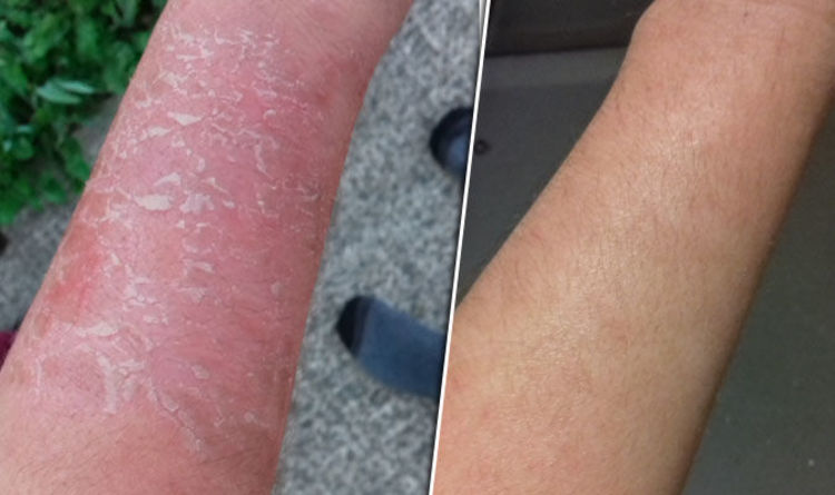 Eczema: Woman CURED skin condition by changing diet and avoiding