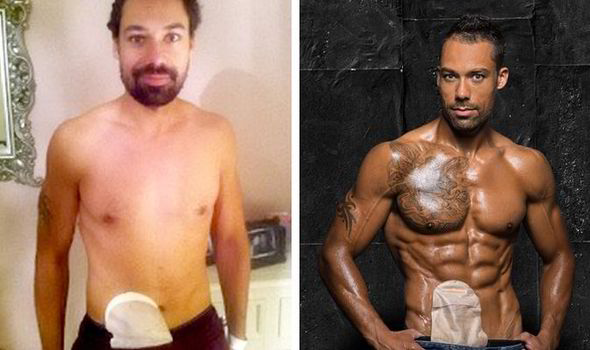 Bodybuilder poses with colostomy bag as he overcomes
