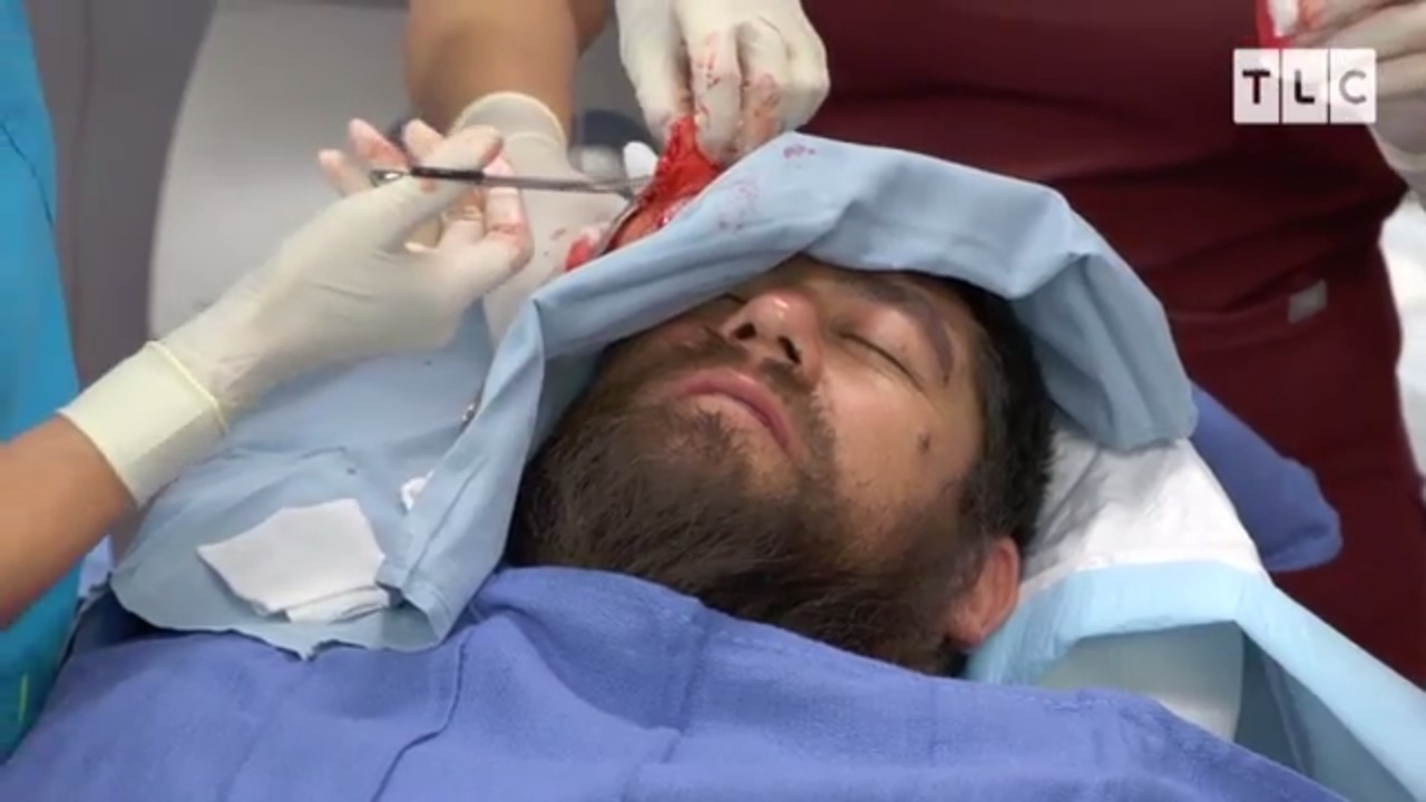 Dr Pimple Popper removes Jose's BALL SIZED lipoma
