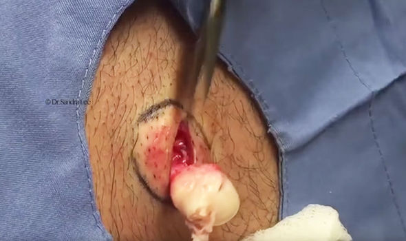 Watch Now Dr Pimple Popper Pulls Cyst The Size Of A Golf