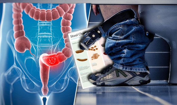 Bowel cancer symptoms: What a healthy stool looks like | Express co uk