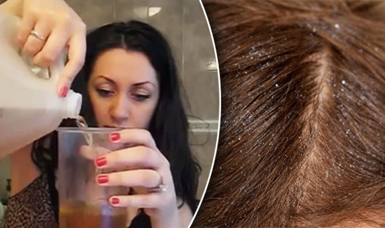 How To Get Rid Of Dandruff Use Apple Cider Vinegar To Banish A Dry