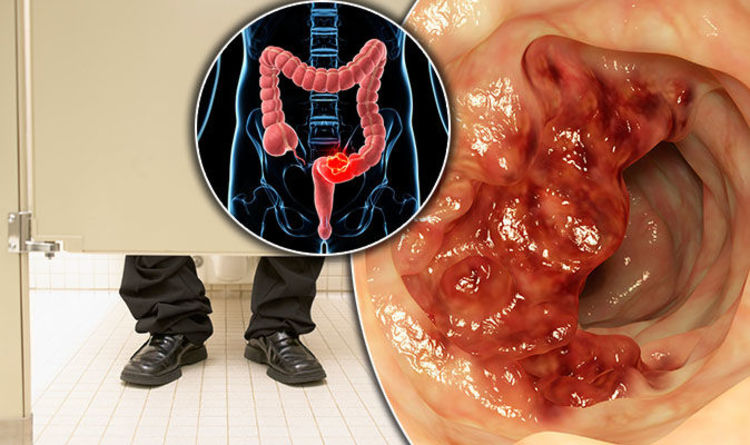 Bowel cancer symptoms: Signs include thin poo - what a healthy stool