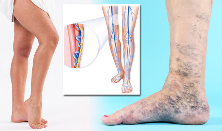 what causes green veins on legs