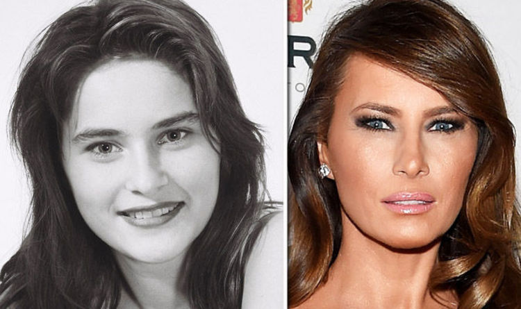 Melania Trump £12,000 plastic surgery BEFORE and after - surgeon