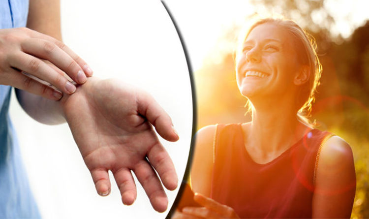 Eczema CURE: Exposure to sunlight could ease symptoms of