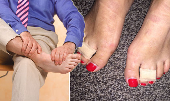 Podiatrist reveals how to REALLY prevent foot pain from high