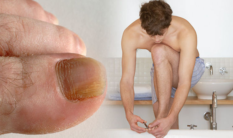 How to get rid of an ingrown toenail: Cut your nail straight across ...