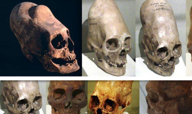 Carbon dating human skull