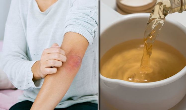 Eczema treatment: Prevent dry and itchy skin at home with coconut