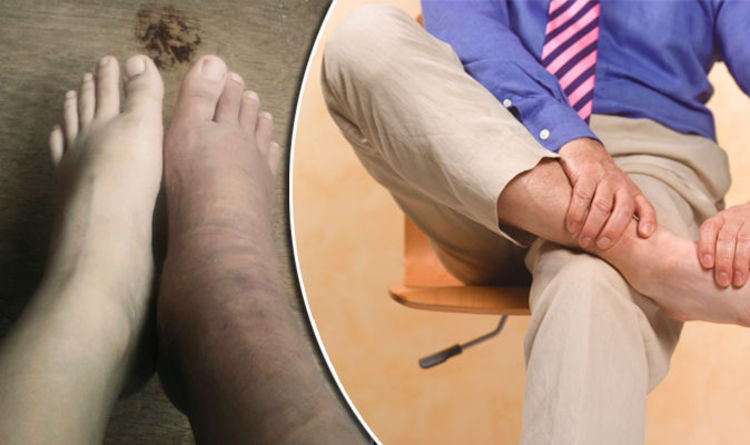 79bca4950 Swollen ankles and feet could be an indicator of THIS life-threatening  condition