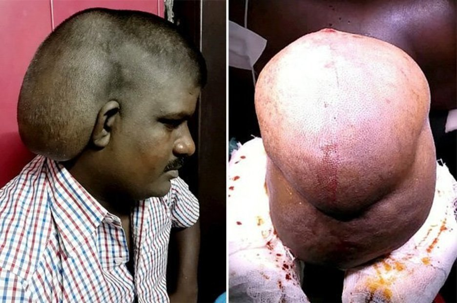 Image result for World's Largest Brain Tumour Weighing 11lbs Removed