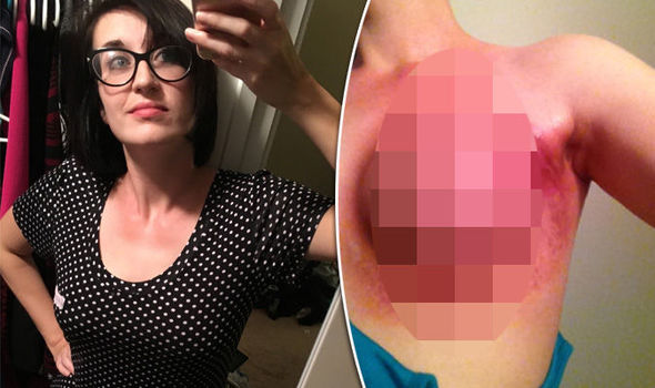 Breast health scar treatment